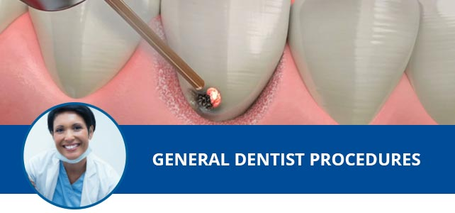 General Dentist Procedures