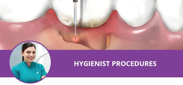 Hygienist Procedures