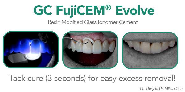 Dr. Jeff Lineberry case using FujiCEM® Evolve for September Dental Economics eblast