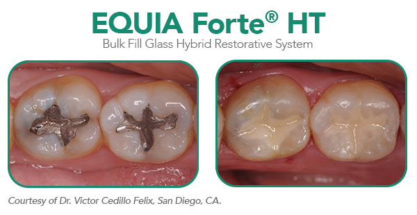 EQUIA Forte® HT product shot for Oct Dental Economics